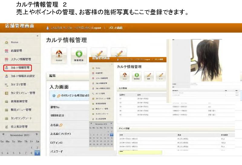 カルテ情報管理 2 売上やポイントの管理、お客様の施術写真もここで登録できます。
